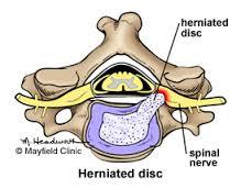 herniated disc, disc herniation, LUMBAR HERNIATED DISC