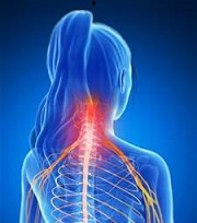cervical radiculopathy video, cervical video , neck pain video
