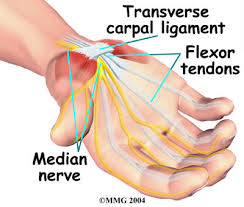 CTS anatomy, anatomy of carpal tunnel syndrome