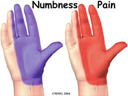 carpal tunnel syndrome, CTS, numbness, pain of hand
