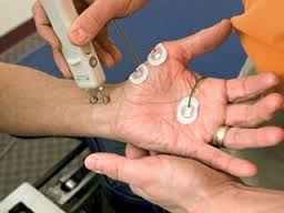 CTS, electrodiagnostic test in CTS, Electrodiagnostic test in carpal tunnel syndrome