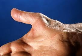thenar atrophy, carpal tunnel syndrome,CTS