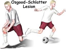 Osgood-Schlatter disease , knee pain