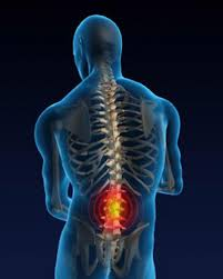 low back pain, lumbar disc herniation